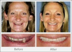 dentures before after