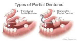 types of partial dentures 696x368 1