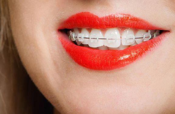 Braces Friendly Foods List ( Orthodontic Dental care)