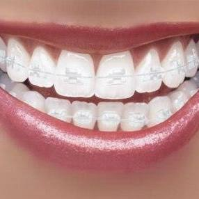 List Of Foods To Avoid -OR- Eat With Braces