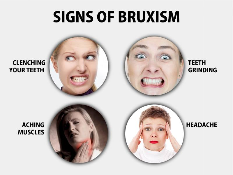 Teeth Grinding, Bruxism | Symptoms, Causes, and Treatment