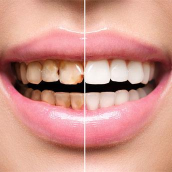 Teeth Stains: 7 Most Common Ways People stain Their Teeth
