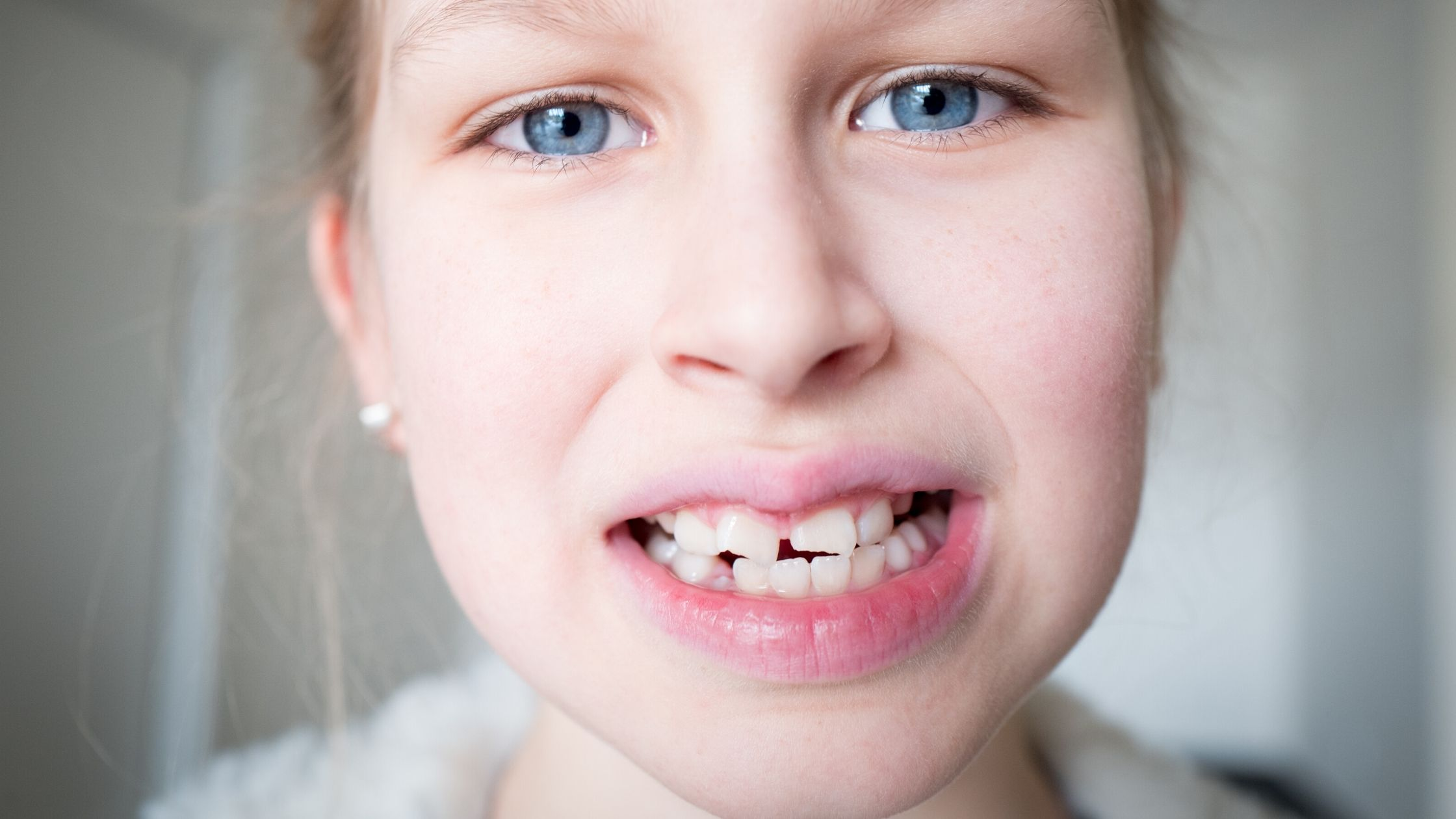 Treatment & Remedies of Crooked Teeth