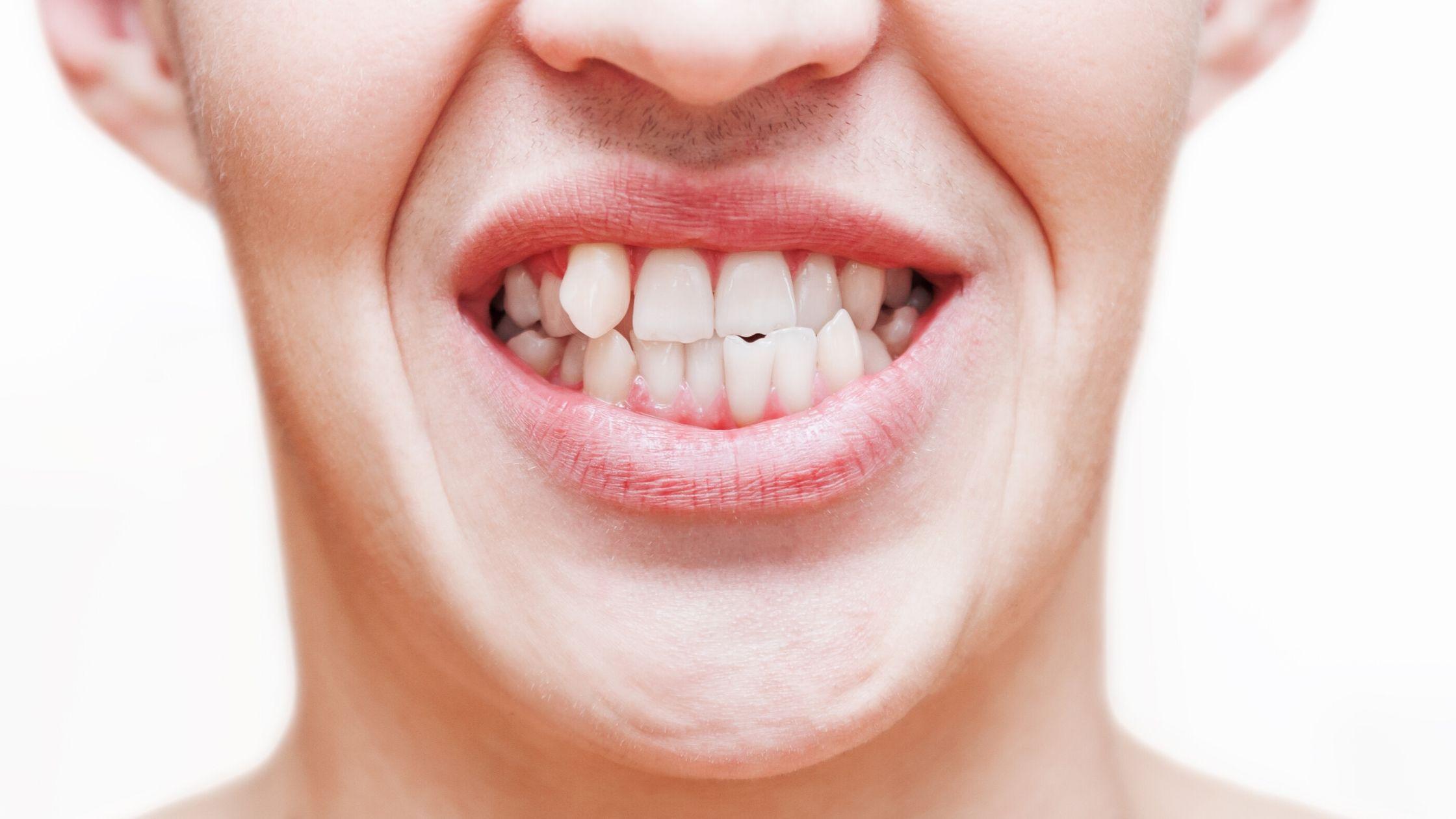 Symptoms of Crooked Teeth