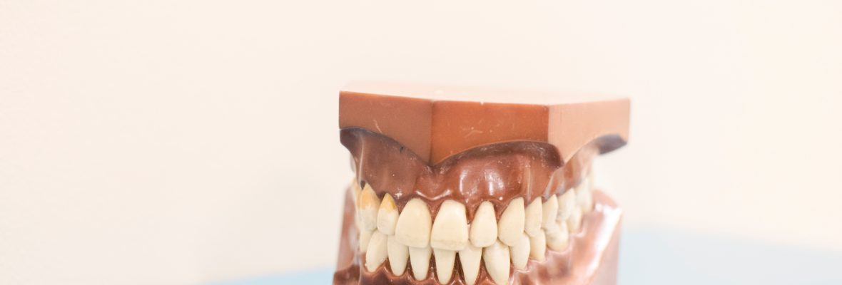 Dentures|Types,cost,Benefits And Denture Care(False Teeth)