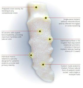 Immediate Ceramic Dental Bio-Implants