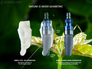 Dental Bio-Implants