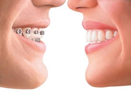 Can a Dental Retainer Fix a Gap? Orthodontics Treatment