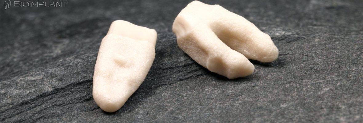 Non-Surgical Non-invasive Dental Bio-implant