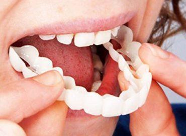 snap-on-instant-smile-perfect-smile-comfort-fit-flex-teeth-fits-veneers-smile-18