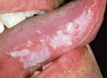 get rid of leukoplakia