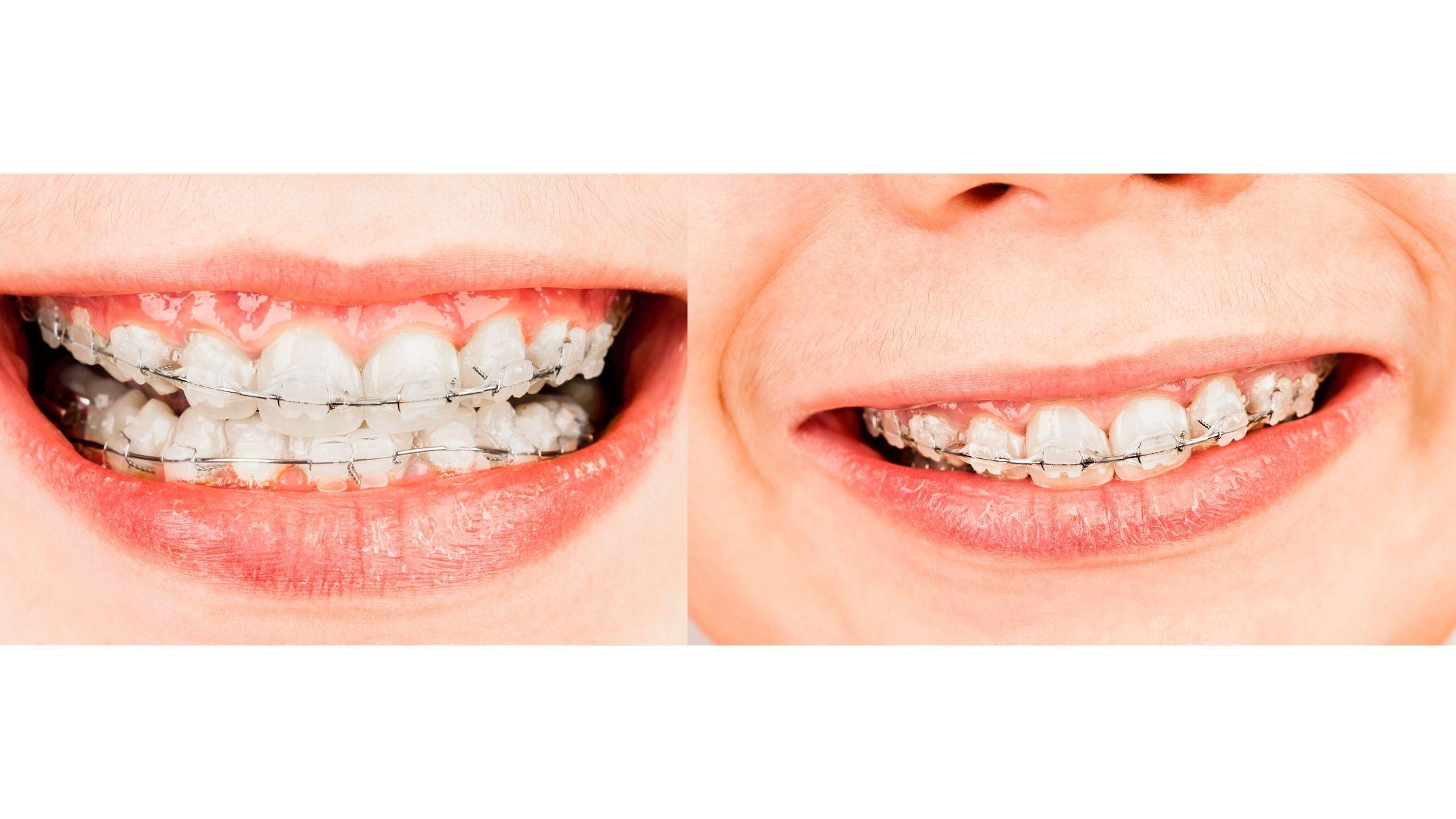 Can braces help fix gummy smile?