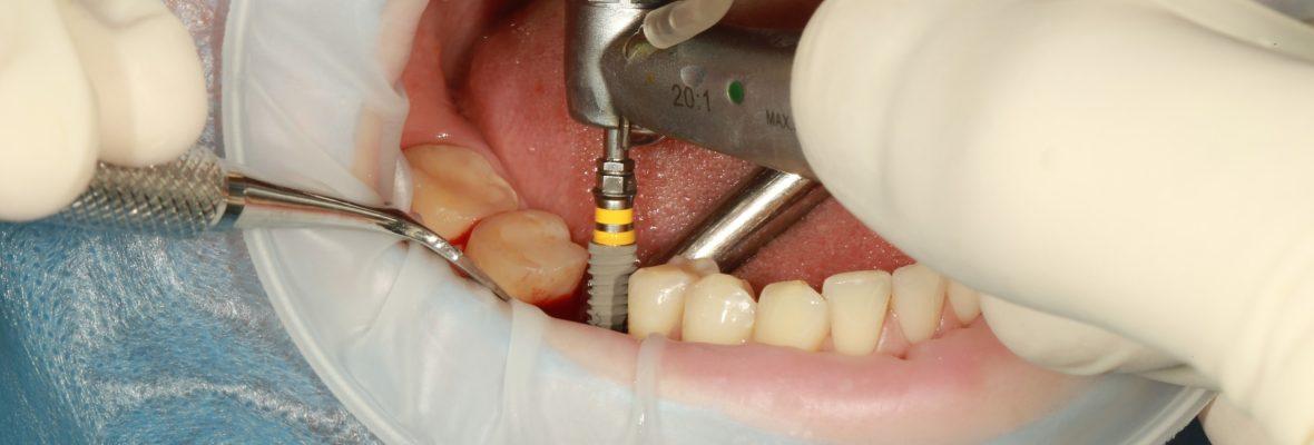 Why should I go for a Dental Implant? Getting Best Dental Implants
