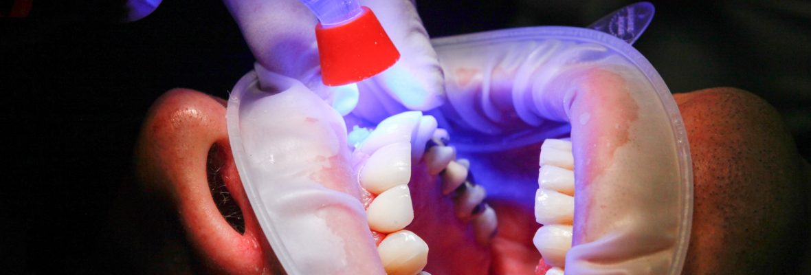 Dental Fillings What are your choices and how does it work?