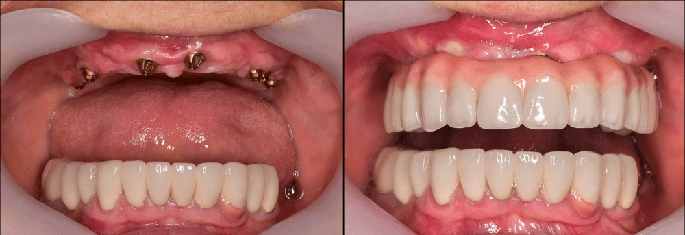 Top 10 Benefits of Dental Implants in Blackheath, Midlands