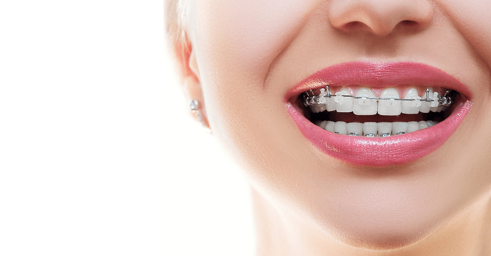 Approximating the Cost of Getting Invisible Braces