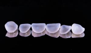veneers dental