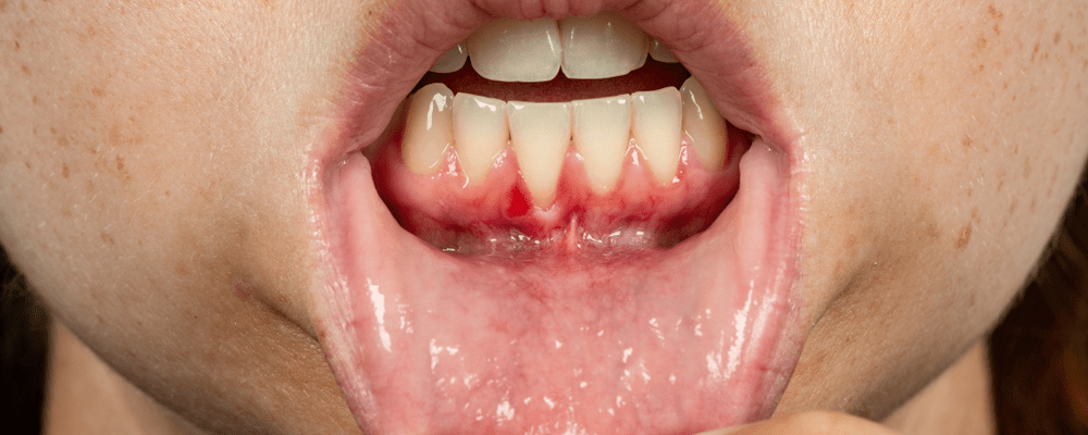 Receding Gums or gingival recession