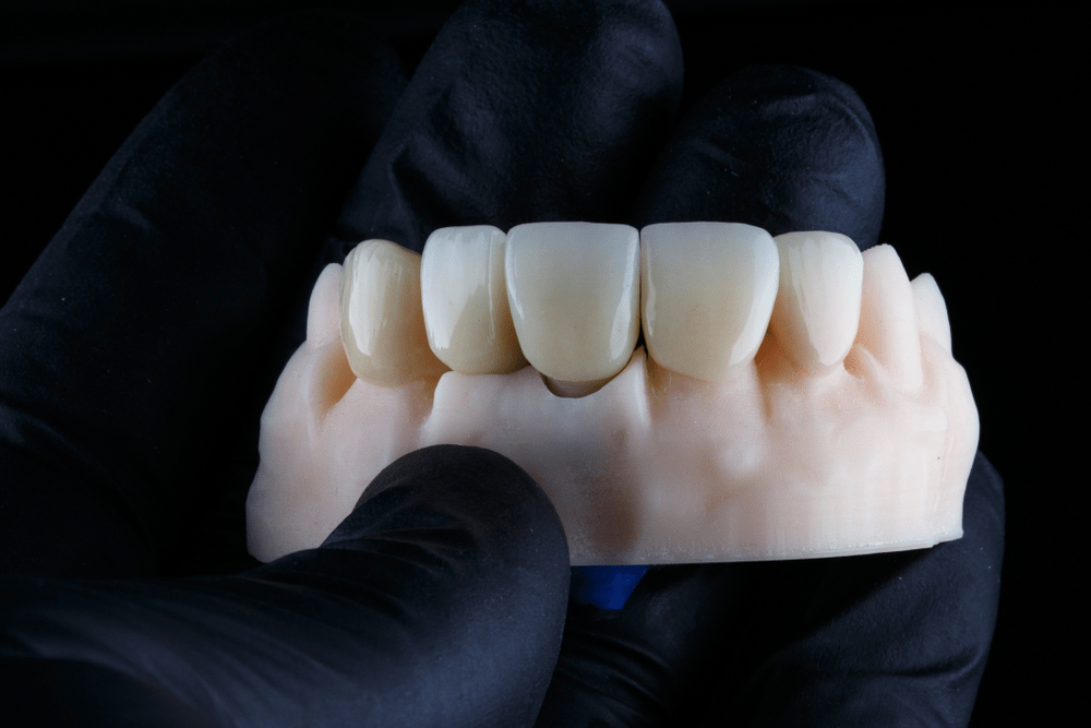 front tooth crown