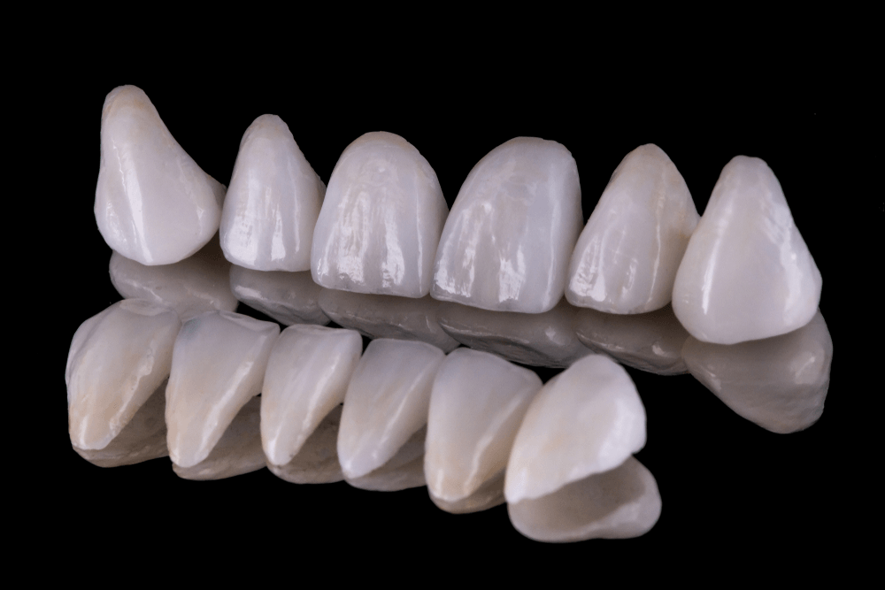 Dental Veneers | All You Need to Know About | Complete Guide