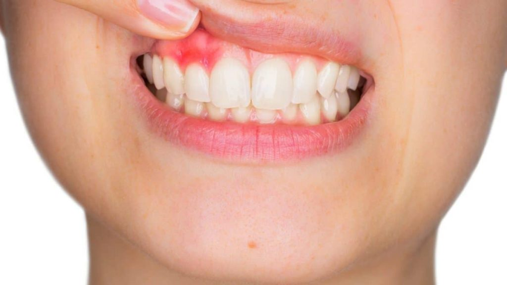 What to do if dental abscess bursts on its own?