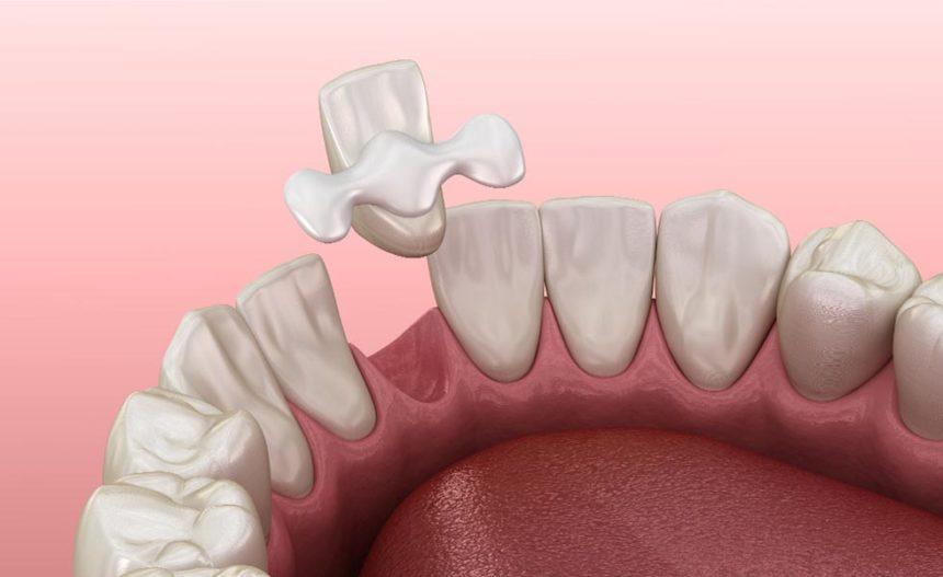 Quali sono i pro e i contro dei ponti dentali del Maryland?