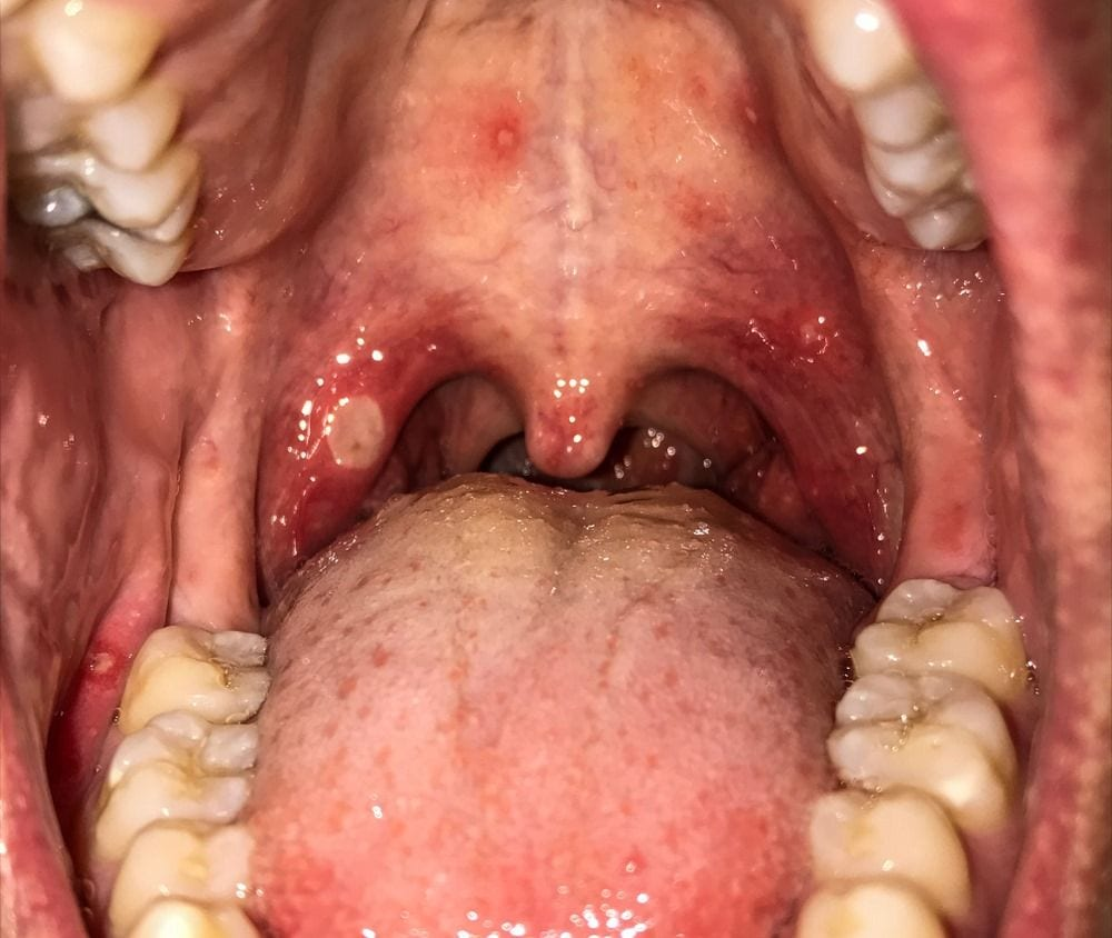 Why does the roof of my mouth hurt?