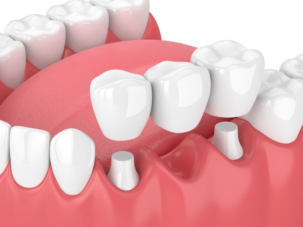 Amazing Facts About Zirconia Crowns Vs. Porcelain Fused To Metal Crowns [2020]