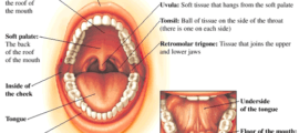 Remove term: roof of mouth sores roof of mouth sores