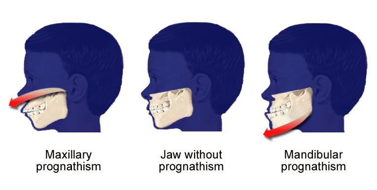 Overbite information