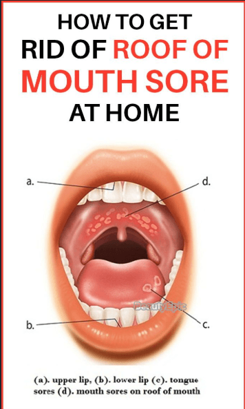 Roof of mouth hurts remedy