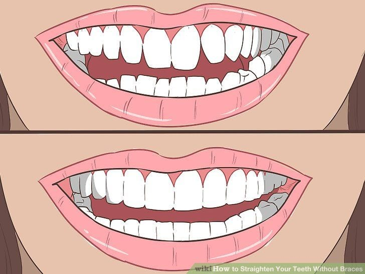Small and large gap between teeth