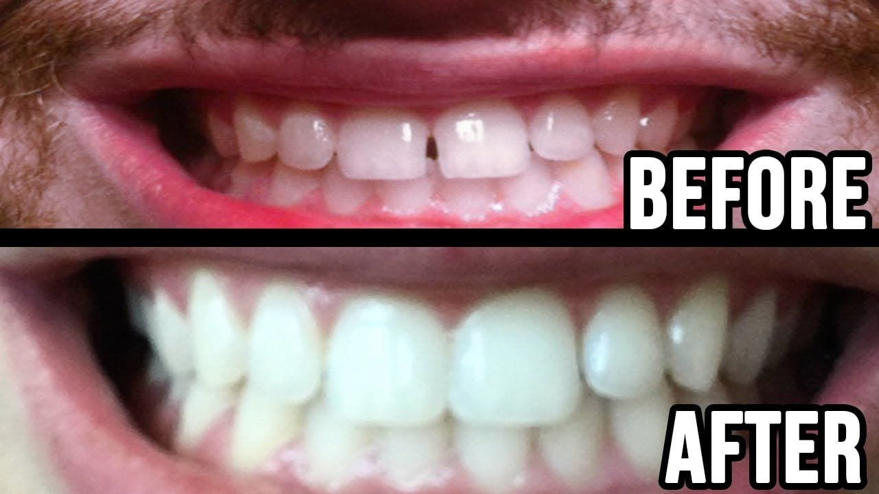 Retainer gap fixing before and after