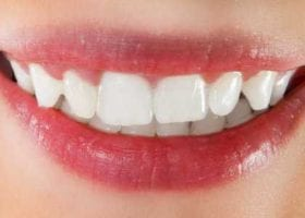 How to Whiten Teeth with Aluminum Foil