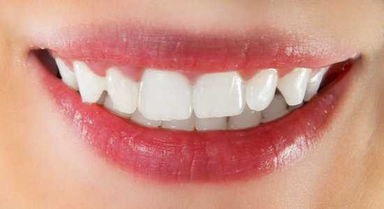How to Whiten Teeth With Aluminum Foil?