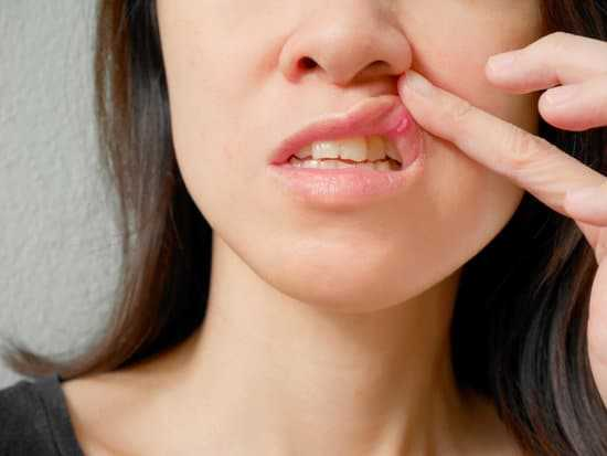 How To Eliminate Canker Sores in the Mouth?