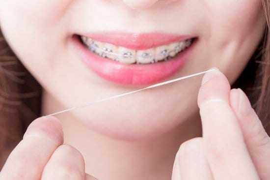 How to Floss With Braces? Step by Step