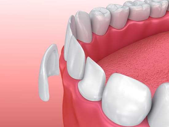 When to Replace Dental Veneers?