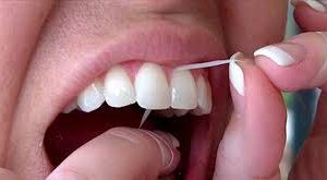 Why flossing is important?