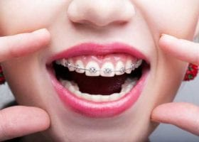 important-reasons-adults-should-get-braces
