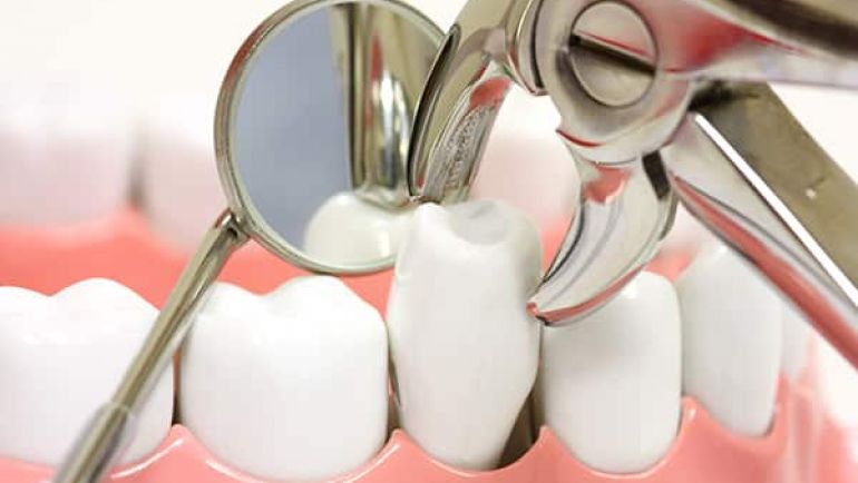 What are the risks involved in wisdom tooth