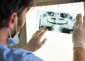 types of dental prosthesis