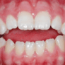 what-is-open-bite-overview-symptoms-causes-treatments