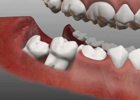 Wisdom Teeth Removal latest facts
