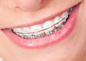 How Long Do Braces Take To Straighten Teeth in 2020