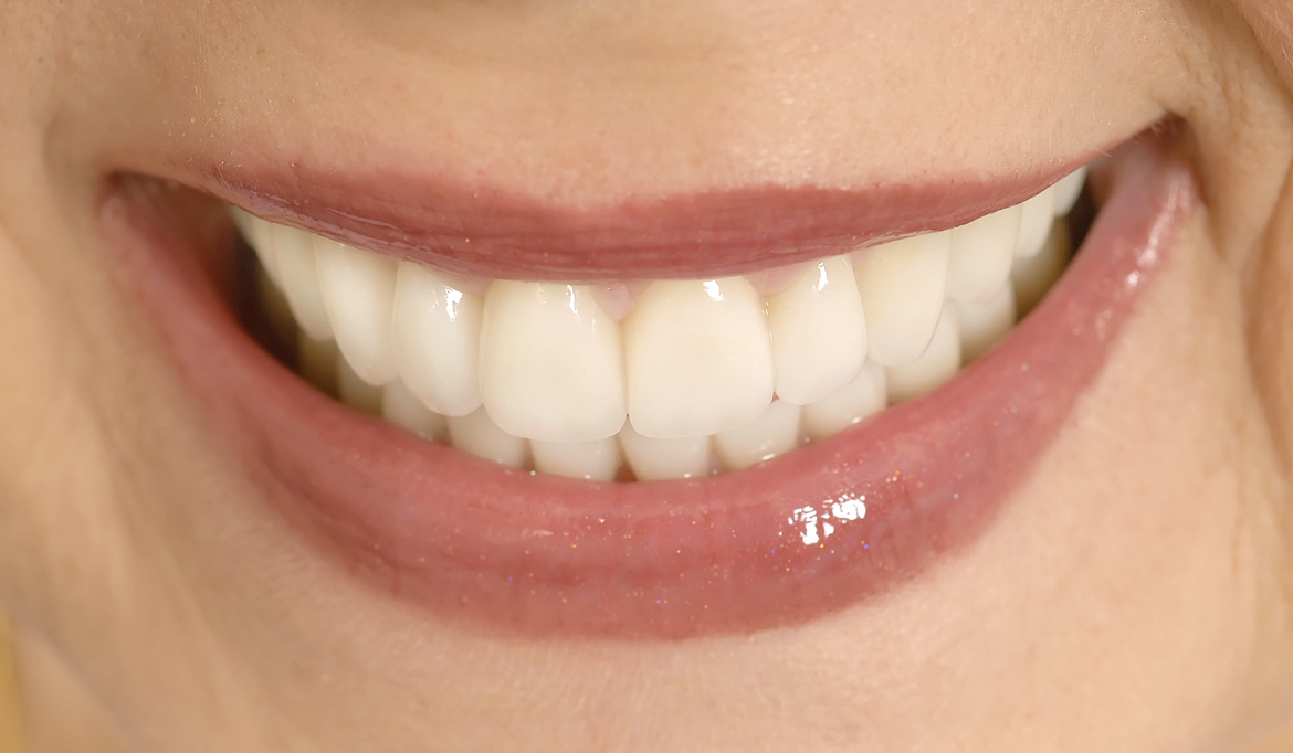 6 Reasons to Consider Cosmetic Dental Work