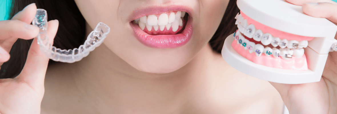 Why Invisalign Is Better than Braces? | Best Reasons to get Invisalign