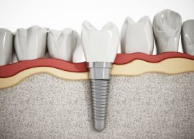 Truth About Dental Implants