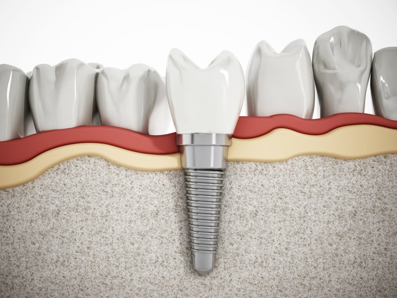 What is The MYTHS and Truth About Dental Implants?