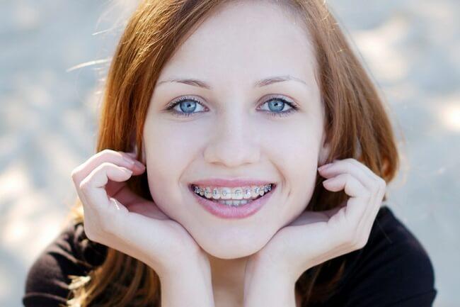 Girl Wearing dental braces